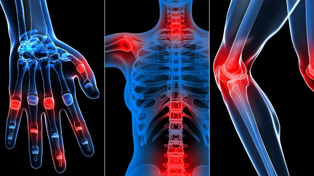hogyan kell kenni a kezét ízületi fájdalommal