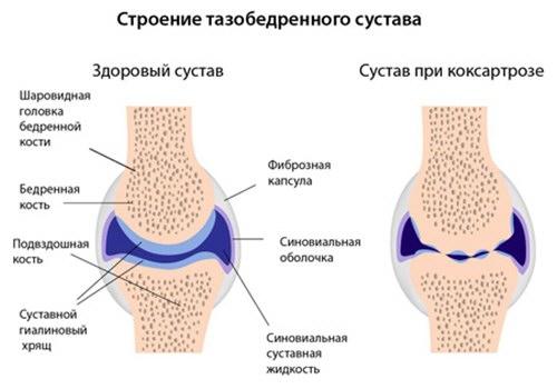 a csípőízület deformáló artrózisa 2-3 fokos kezelés a comb és a térd duzzanata