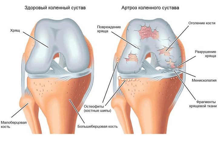 milyen kenőcs az ízületek ízületi gyulladásáért krónikus boka fájdalom