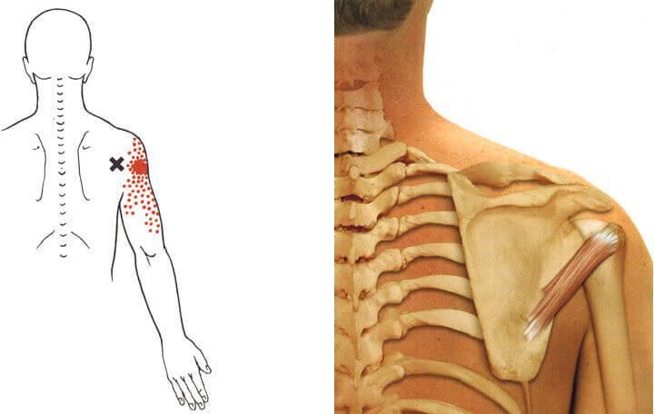 a mellkasi gerinc tünetei artrózisának kezelése