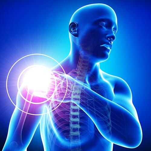 a nyaki és a vállízületek fájdalma ízületi mobilitási krém