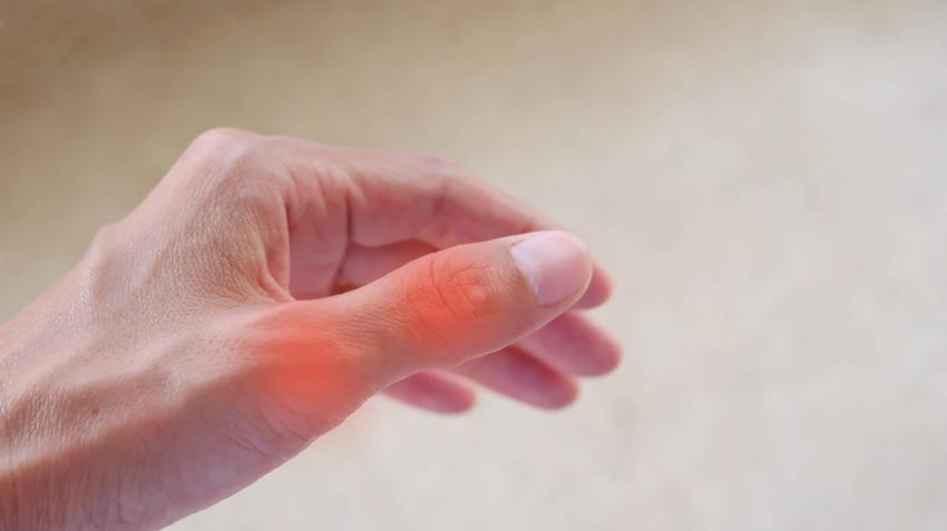 a rheumatoid arthritis melegíti az ízületeket hogyan lehet meghatározni ízületi ízületi gyulladást