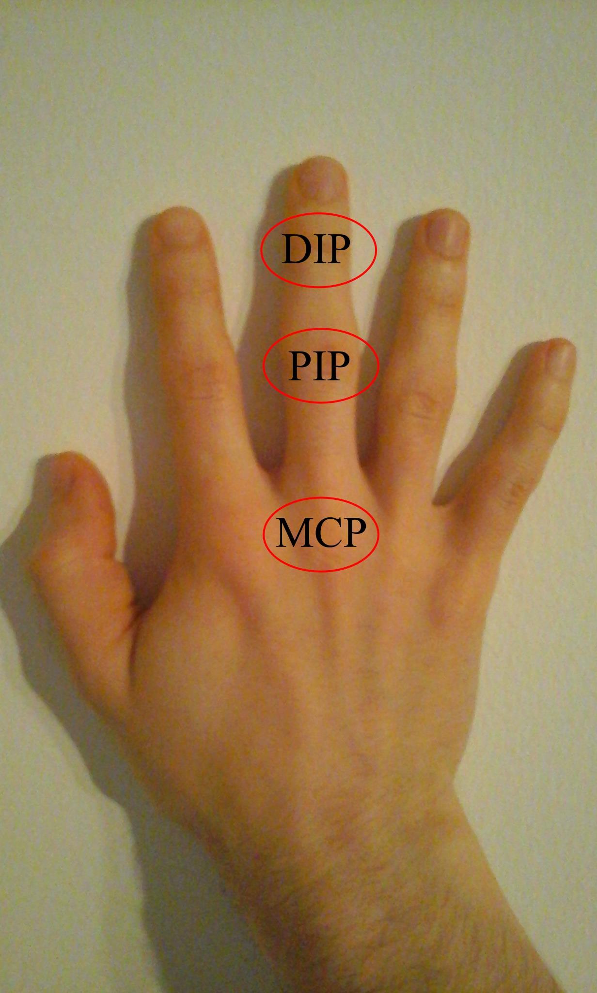 a térd artritisz radiológiai tünetei