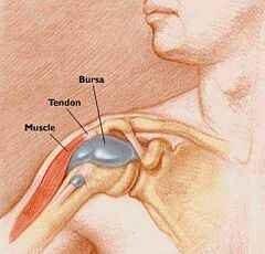 a térd bursitisének kezelése dimexidummal