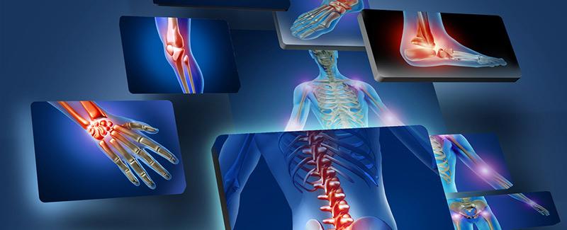 hogyan gyógyítható a könyökízület fájdalma arthropant vételár