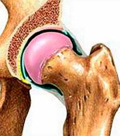deformáló ízületi fájdalomkezelés ízületi duzzanat kezelésére vonatkozó recept
