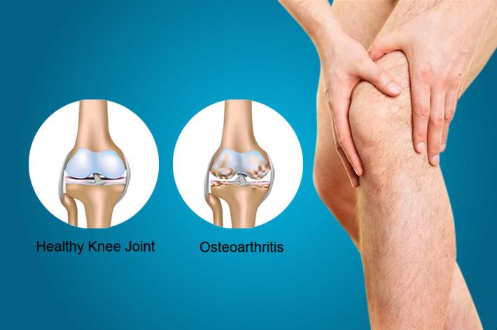 ízületi betegségek, osteoarthrosis