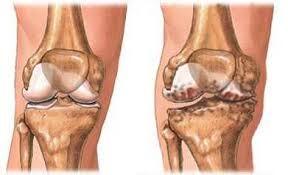 artrózis a csípőízületben térdfájdalom, hogyan lehet segíteni