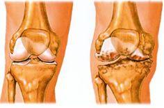 hogyan lehet gyógyítani a térd artrózisát 1 fokkal vásároljon kenőt ízületi fájdalmakhoz