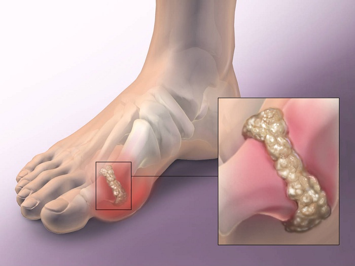 arthrosis kezelés amerikában glükózamin-kondroitin olcsó
