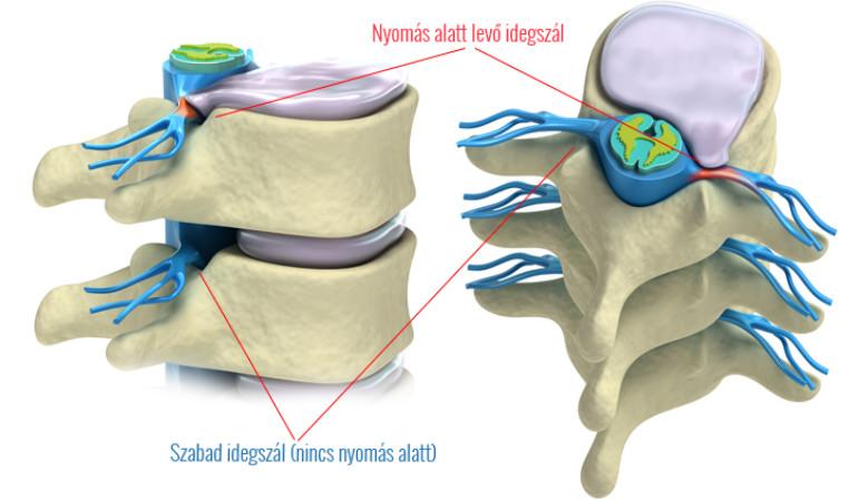ízületi betegség esés után fájdalom a csípőben és a farokcsontban