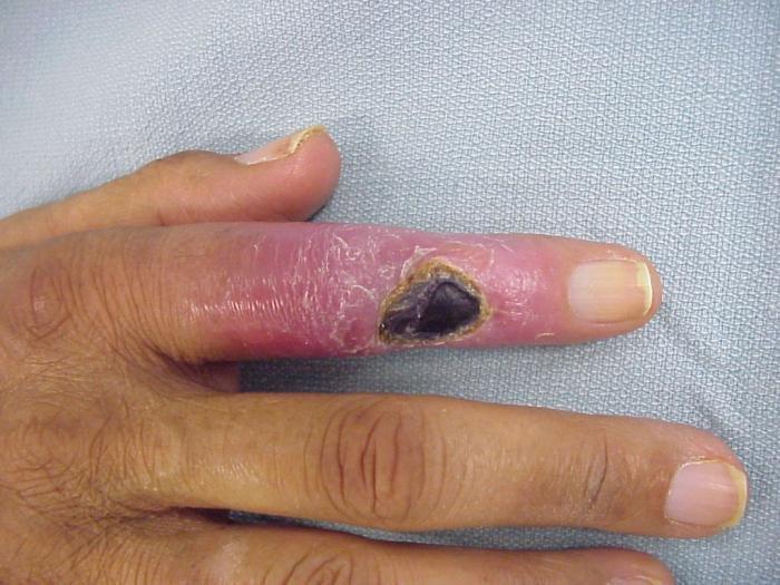 az ujj ízülete fáj, ha meghajlik milyen ízületek és izmok fájhatnak