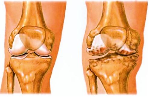 csípőízület ii. fokozatának osteoarthrosis miért fáj a csontok és ízületek éjjel