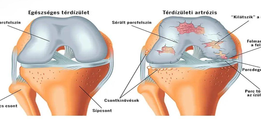 milyen kenőcs a térd artrózisához rheumatoid arthritis és arthrosis kezelés