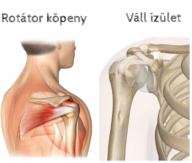 fájdalom a váll ízületeiben melyik orvos deformáló artritisz kezelése
