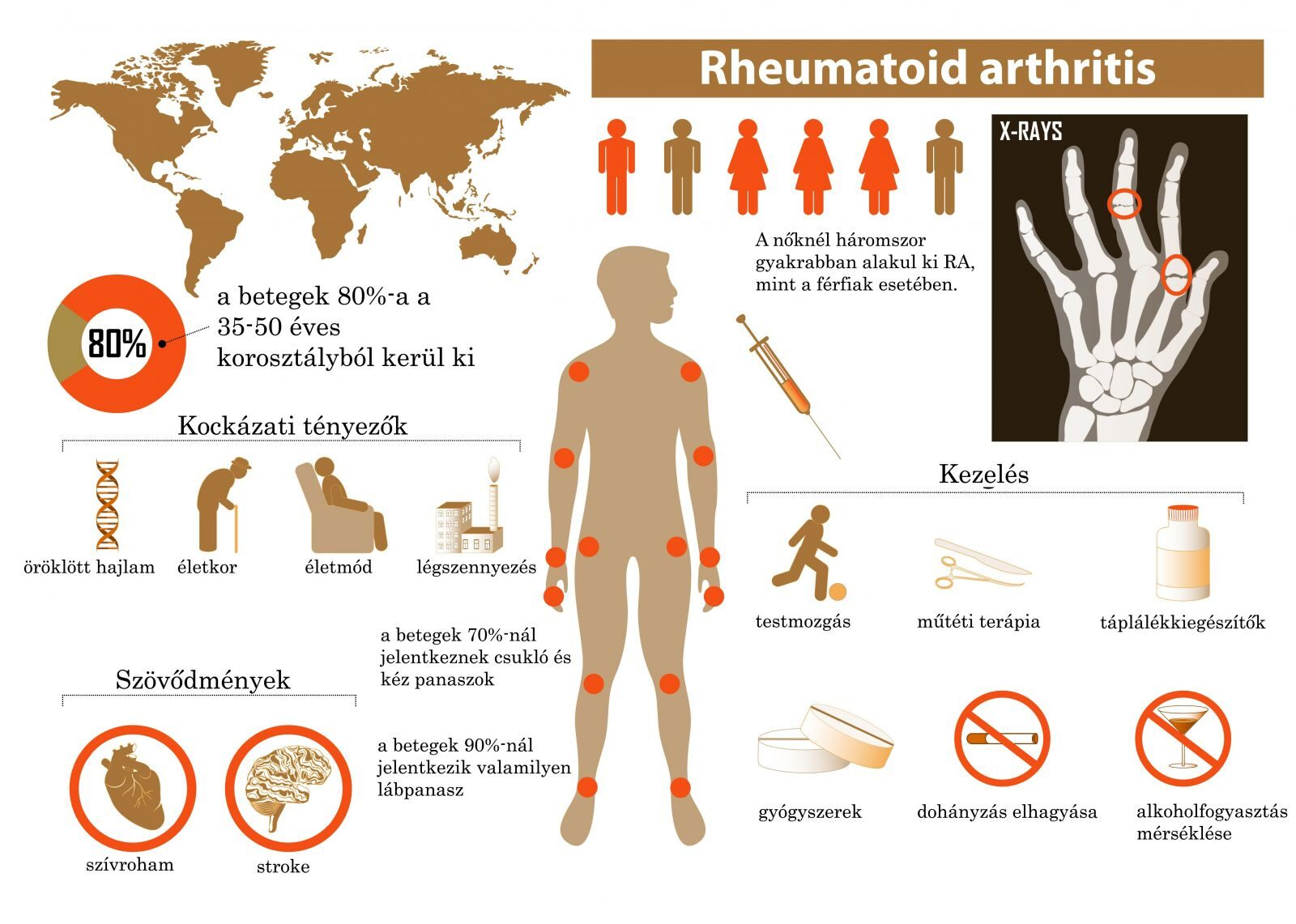 bal kéz reumás ízületi gyulladása ízületi fájdalmak elvonási szindróma