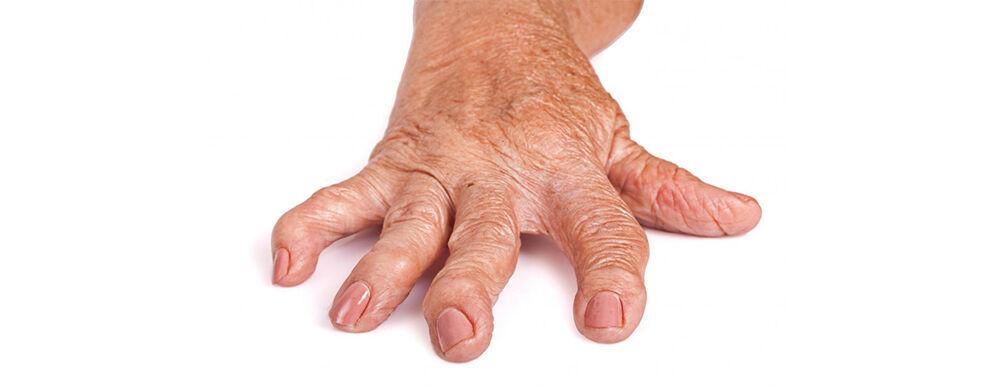 Hogyan kezeljük a kézízületek fájdalmát. A kéz- és csuklóízületi gyulladás - leírása, kezelése