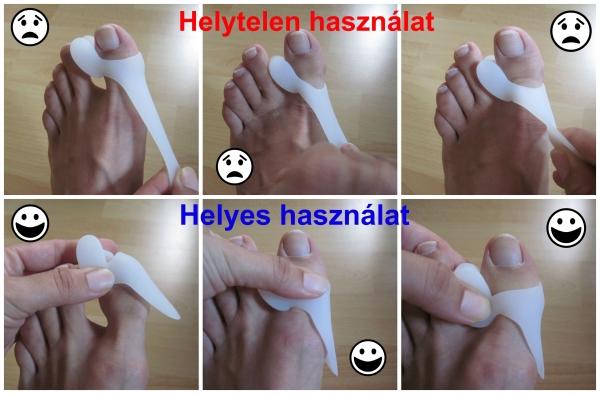 fájdalom a gyűrűs lábujj ízületében artrózis kezelés súlyosbodása