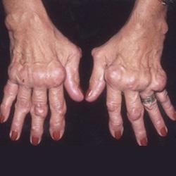 izületi gyulladás torna hogyan lehet felismerni a kézízületek fájdalmát