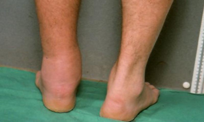 deformáló artrózis a térd gonarthrosisban