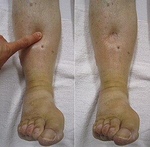 a térd artrózisának kezelésére
