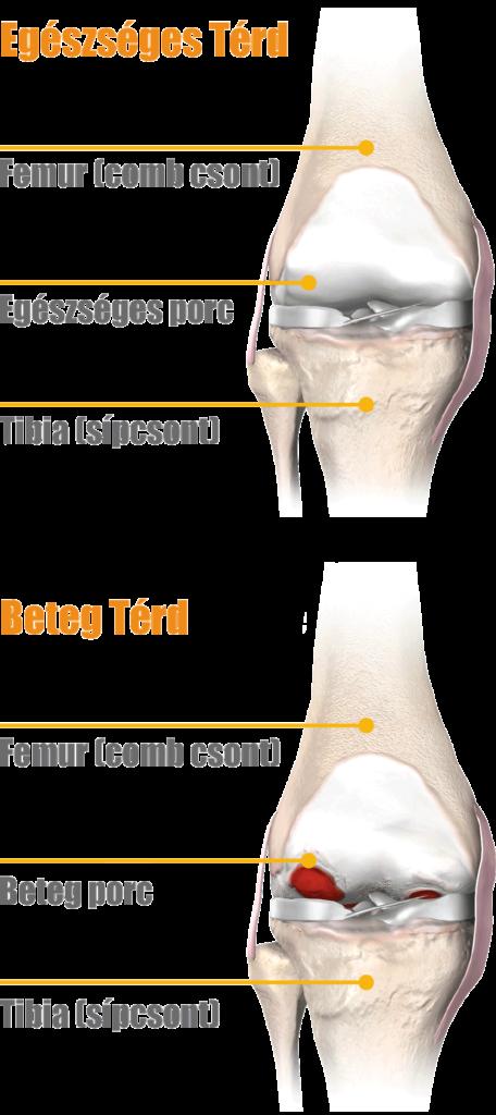 ínkárosodás a könyökízület tünetei