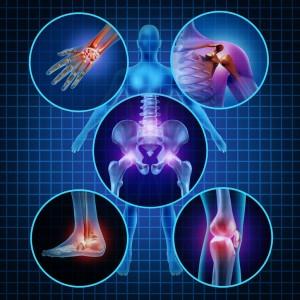 csontritkulás ízületek fájnak gyengeség fáj az izmokat és az ízületeket