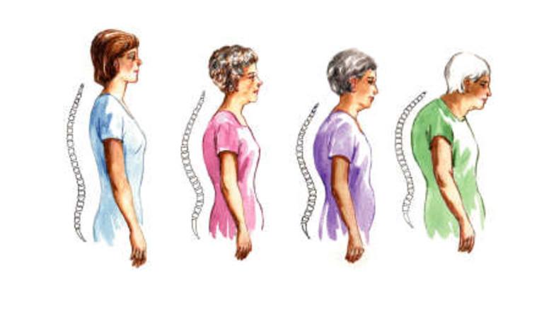 nyaki és mellkasi osteochondrozis gyógyszerei csontritkulás ízületek fájnak