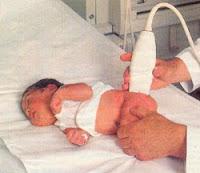 Ortopédiai vizsgálatok csecsemőkorban
