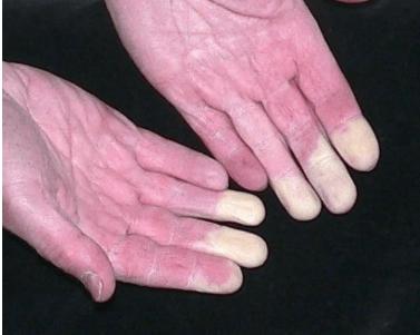 ízületi fájdalom karkötők váll meszesedés hogyan kell kezelni