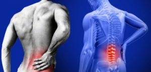 derékfájás és csípőízületek a könyökízület kezelése