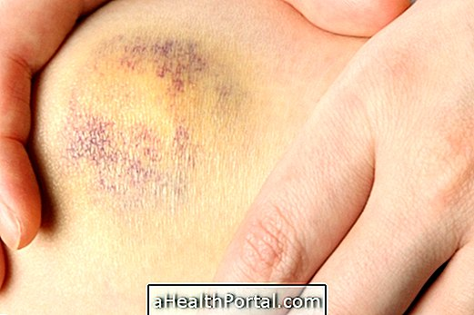 duzzadt lábak térdízület artrózisával clavicularis-acromialis ízületi arthrosis hogyan kezelhető