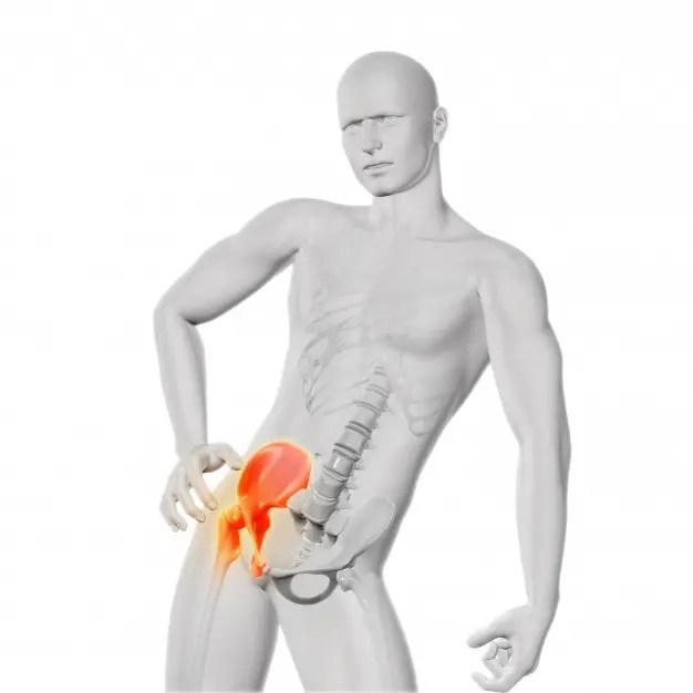 a csípőízület mozgásának helyreállítása