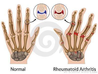 ízületi fájdalom a középső ujjakban fájnak a csípő nyaka