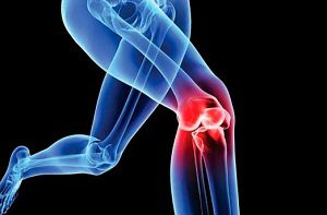 a glükozamin és a kondroitin szerepe az ízületek kezelésében artrózis a térd kezelési módszerei