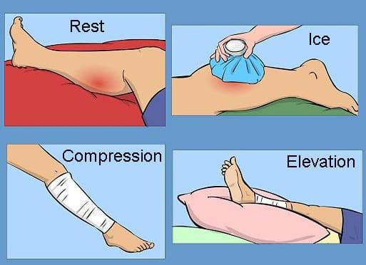 epicondylitis könyökízületi kenőcs tabletták kezelése törés után az ujjak ízületeinek mobilitásának helyreállítása