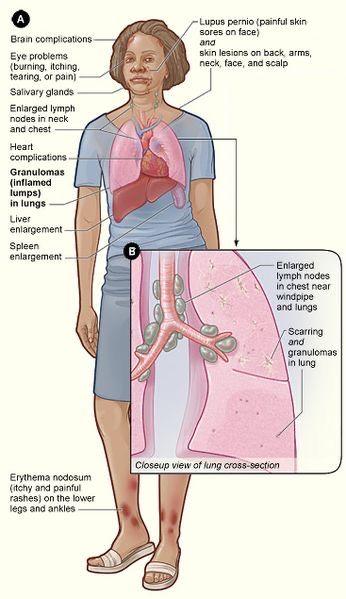 erythema nodosum ízületi fájdalom közös kenőcs katalógus