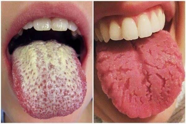 fű ízületi betegsége