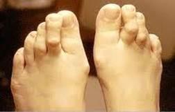fájdalom a gyűrűs lábujj ízületében ízületi betegségek gyógyszerének áttekintése