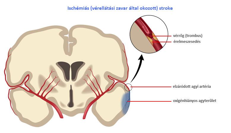Fejfájás fájdalomcsillapítók