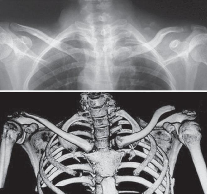 fájdalom a sternoclavicularis ízületben lábízület kezelő ortopéd