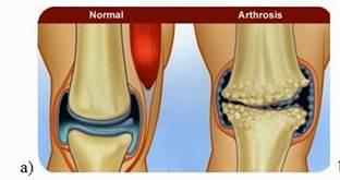 gyakorlatok artrózis kezelésére ízületi fájdalom a lábakban éjjel