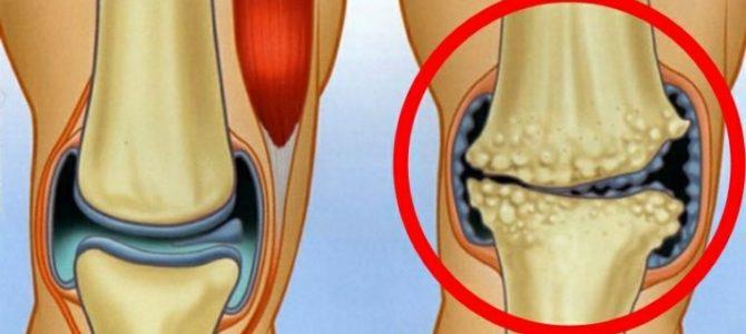 gyakorlatok artrózis kezelésére csípőízületek összeroppant, mit kell tenni, hogyan kell kezelni
