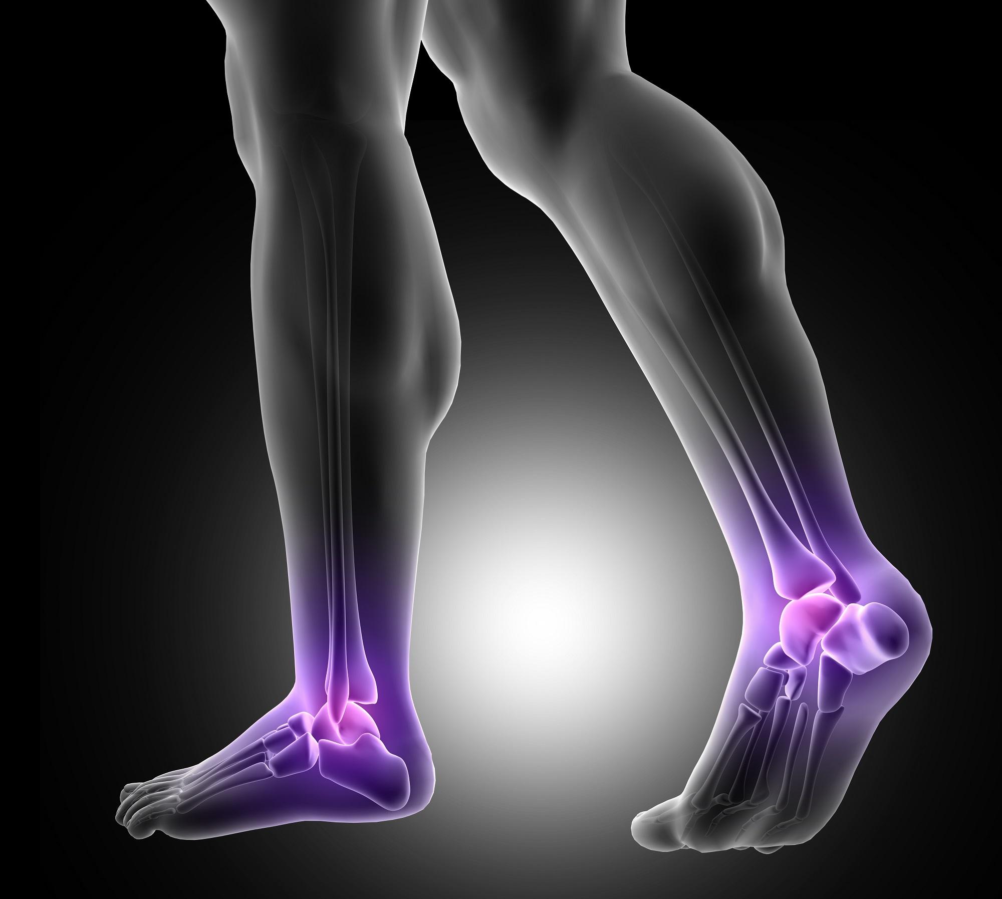 gyakorlatok lábak izületi fájdalmakkal mi köze az ízületek súlyos fájdalmaihoz