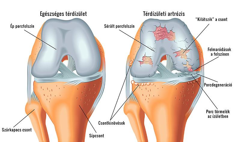 hogy az ízületek deformálódnak artrózis és ízületi gyulladás esetén