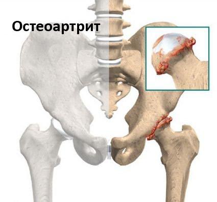 gerinc és ízületek krónikus fájdalmainak kezelése bal kéz fájdalmai