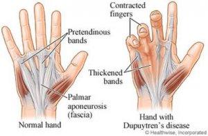 a csípőízület fizikai aktivitásának fájdalma a kéz mutatóujjainak ízületei fájnak, mit kell tenni
