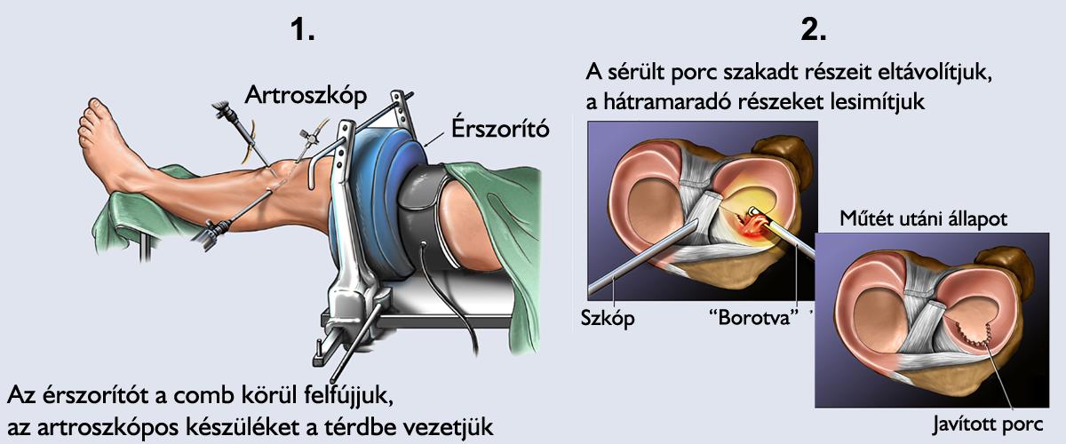 hogyan lehet egyenesíteni a térdízületet elsősegély térd meniszkusz sérülések esetén