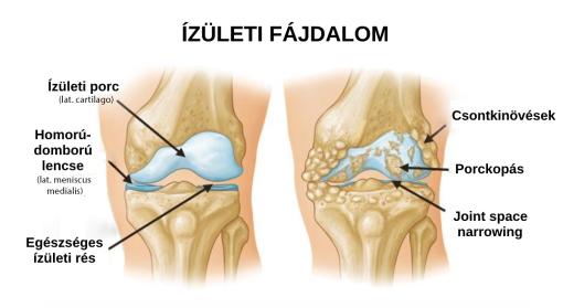 a gyógyszer az ízületi fájdalommal függ össze kúpok az ujjak ízületein sérülés után