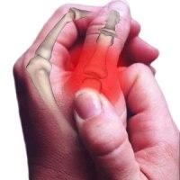a térdízület kezelésének részleges szakadása scaphoid ízületi kezelés